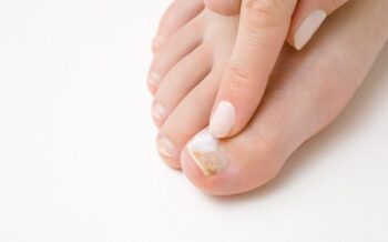 Toe-Nail Fungus
