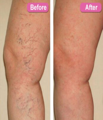 Laser spider vein treatment